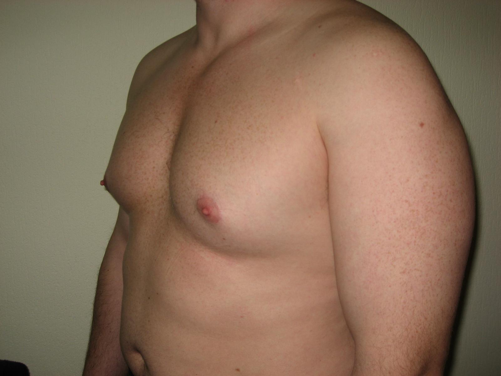 Женская грудь у мужчин причины и как с ней бороться